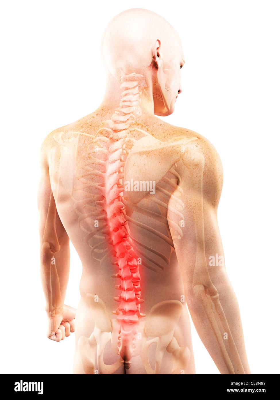 Back pain, conceptual computer artwork Stock Photo: 43218233 - Alamy