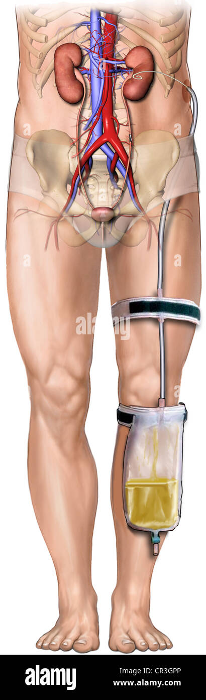 nephrostomy tubecollection bag male stock photo