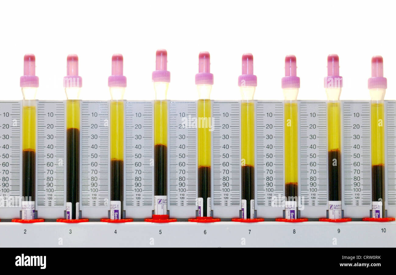 erythrocyte sedimentation rate The erythrocyte sedimentation rate (esr) determination is a commonly performed laboratory test with a time-honored role however, the usefulness of this test has decreased as new methods of.