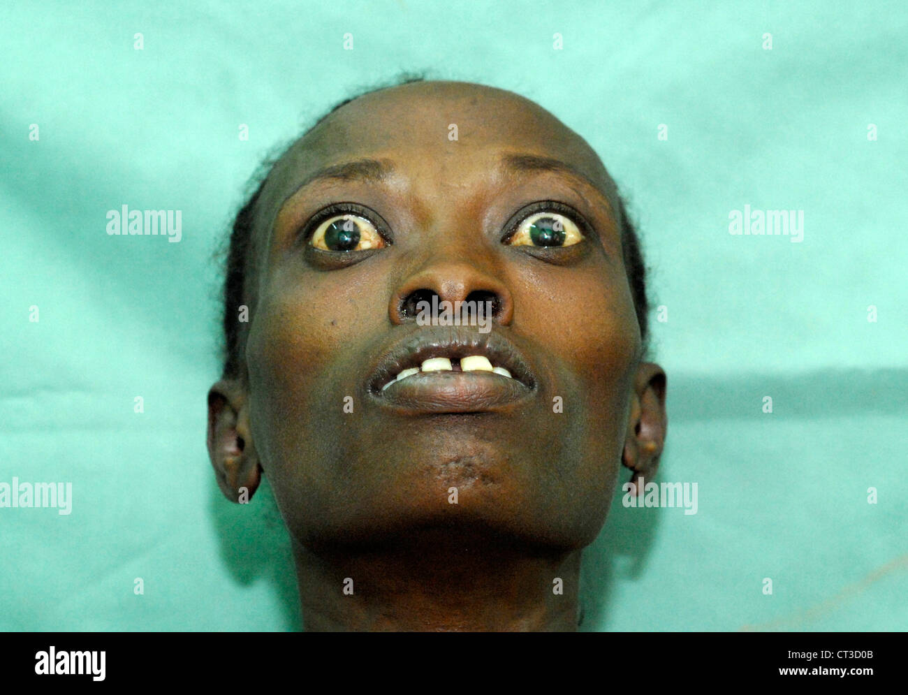 Stock Photo A Woman With Graves Disease Basedow Graves Disease 4924853...