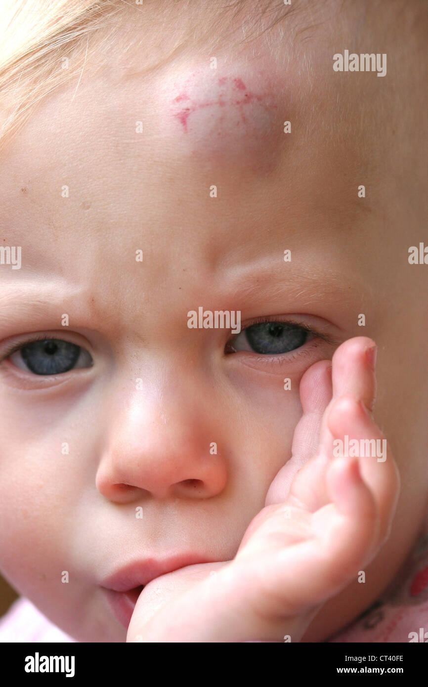 CHILD WITH HEMATOMA Stock Photo, Royalty Free Image ...