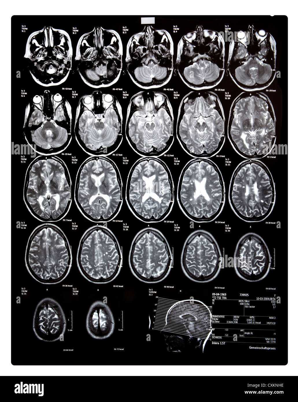 Ct Scan Head Stock Photos & Ct Scan Head Stock Images - Alamy