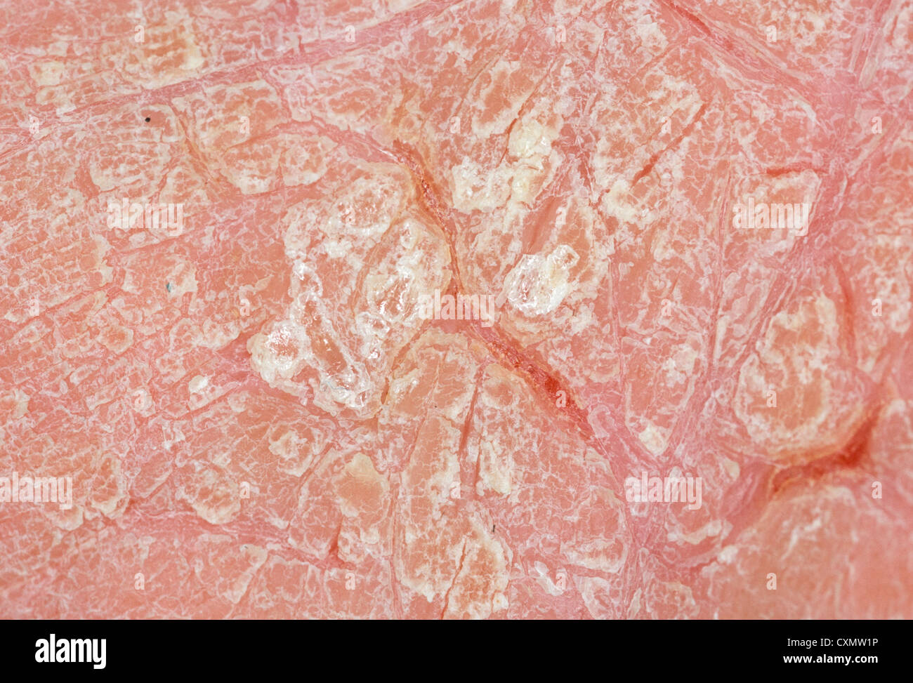 Dermatitis of palm caused by occupational exposure showing ...