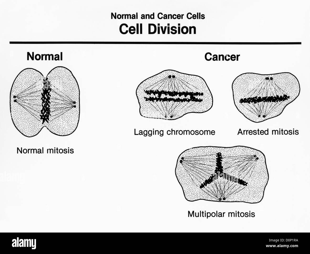 An artists rendition normal cells cancer cells undergoing cell an artists rendition normal cells cancer cells undergoing cell division showing characteristics both cancer cells exhibt pooptronica Images