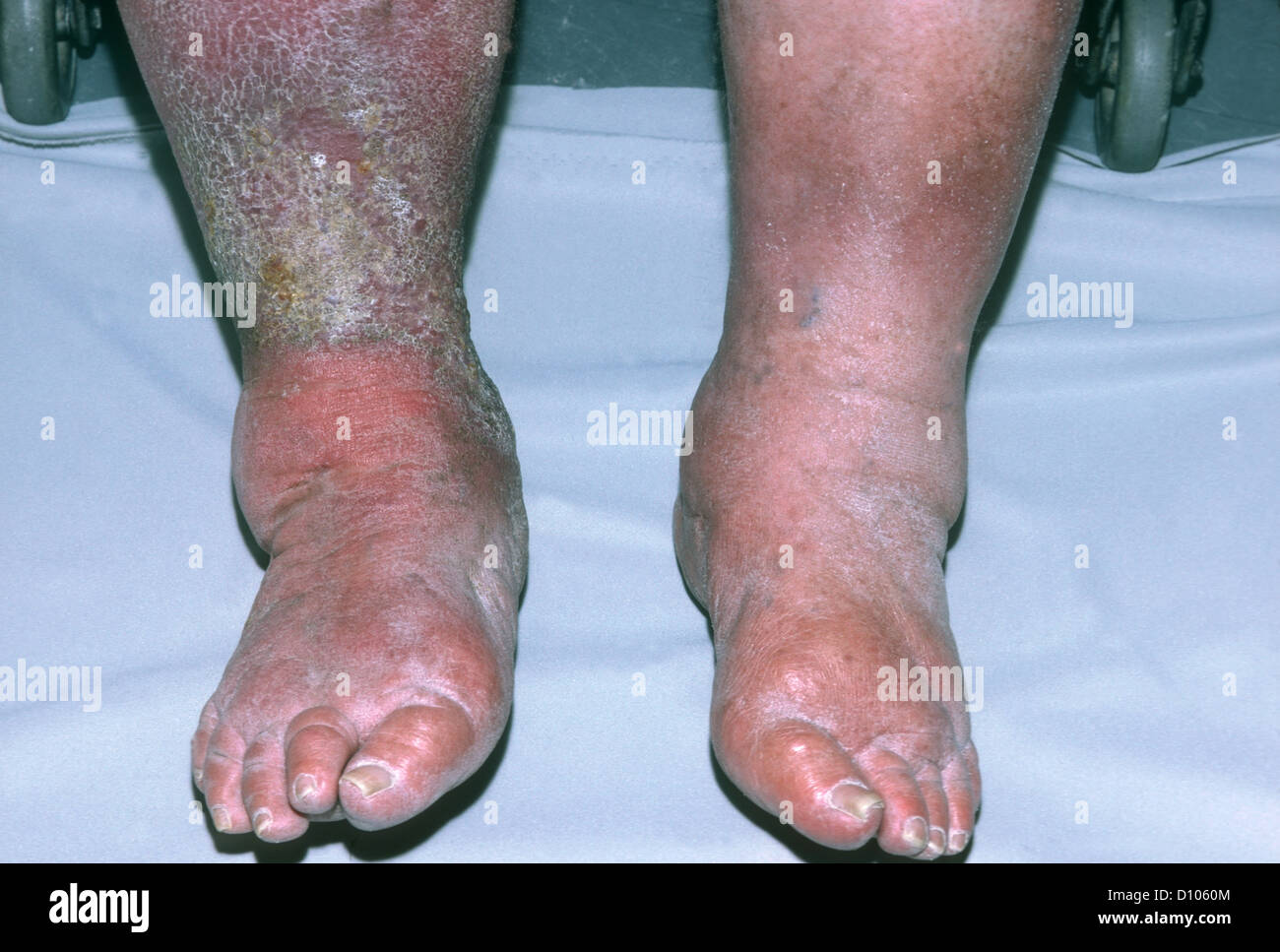 swollen ankles stock photos & swollen ankles stock images - alamy, Skeleton