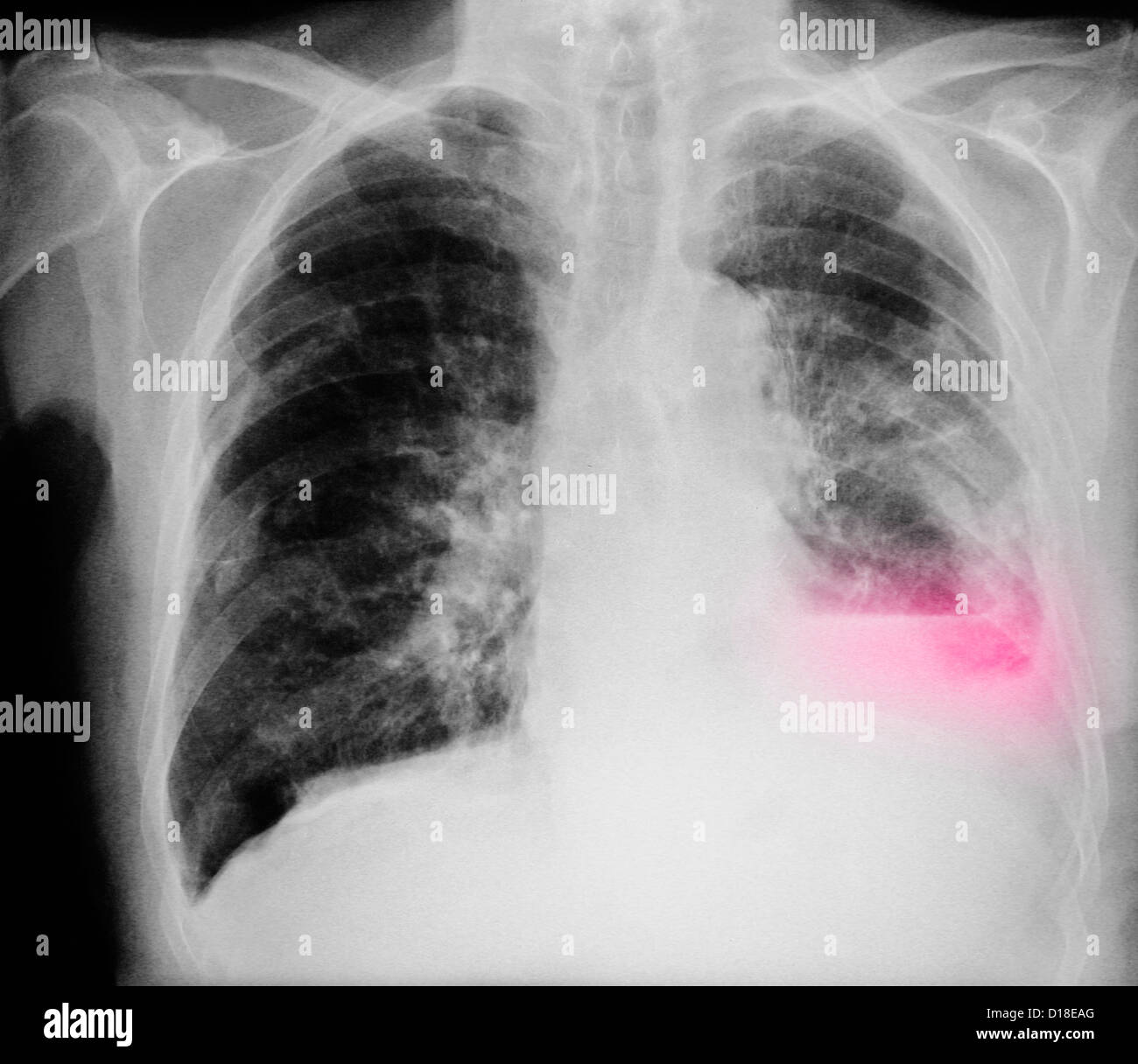 how to tell smoker xray cigarettes