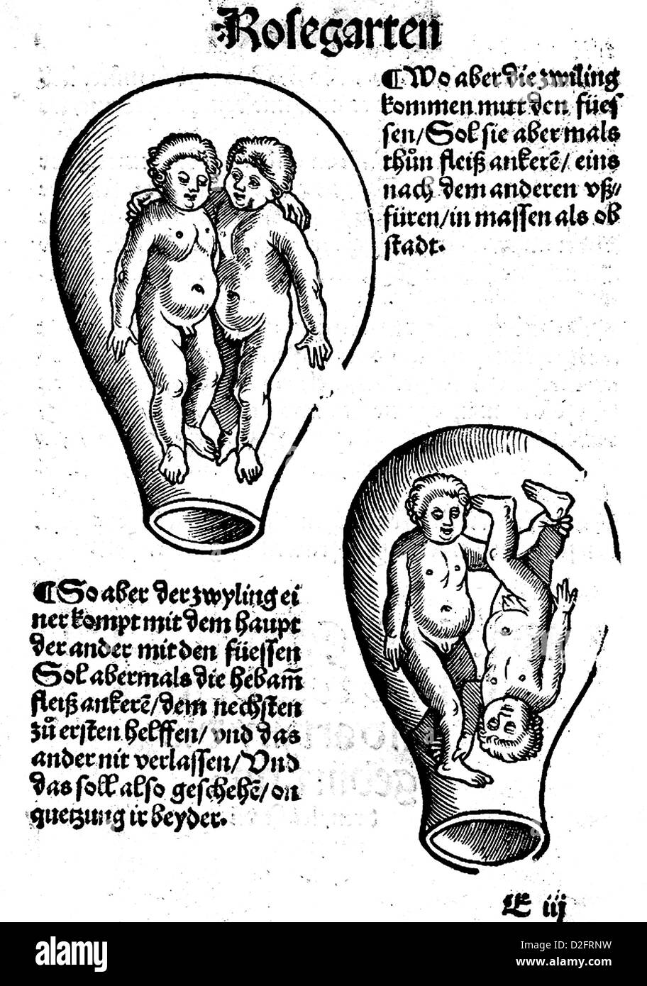 Eucharius rosslin c 1470 1526 diagram of twins in the womb from eucharius rosslin c 1470 1526 diagram of twins in the womb from the 1513 edition of his manual der rosegarten pooptronica Image collections