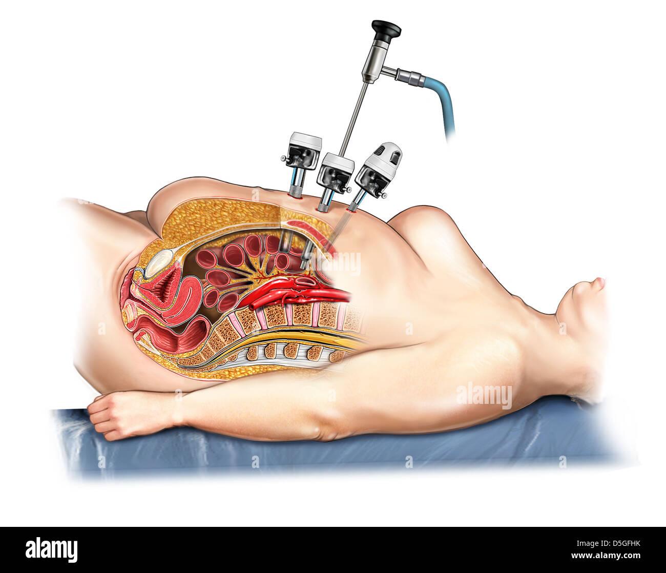 Laparoscopic Surgery - Trocar Insertion Stock Photo, Royalty Free ...