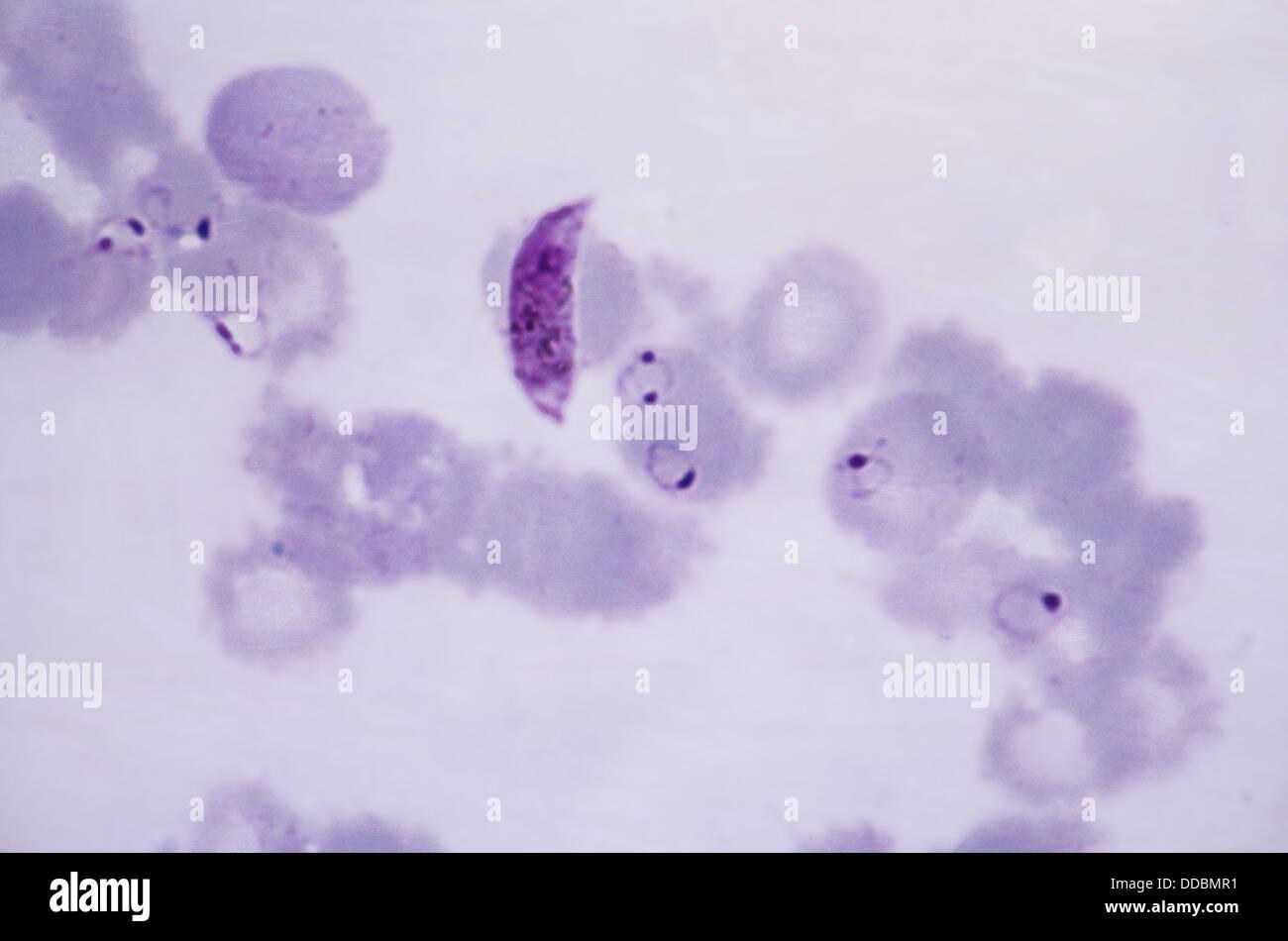 blood smear plasmodium falciparum 1000 x protozoan