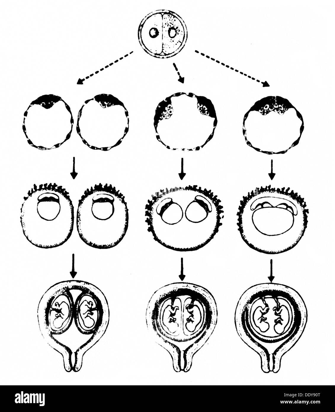 People twins schematic diagram of the possible development of people twins schematic diagram of the possible development of monozygotic twins drawing from zeitschrift fuer klinische pooptronica Image collections