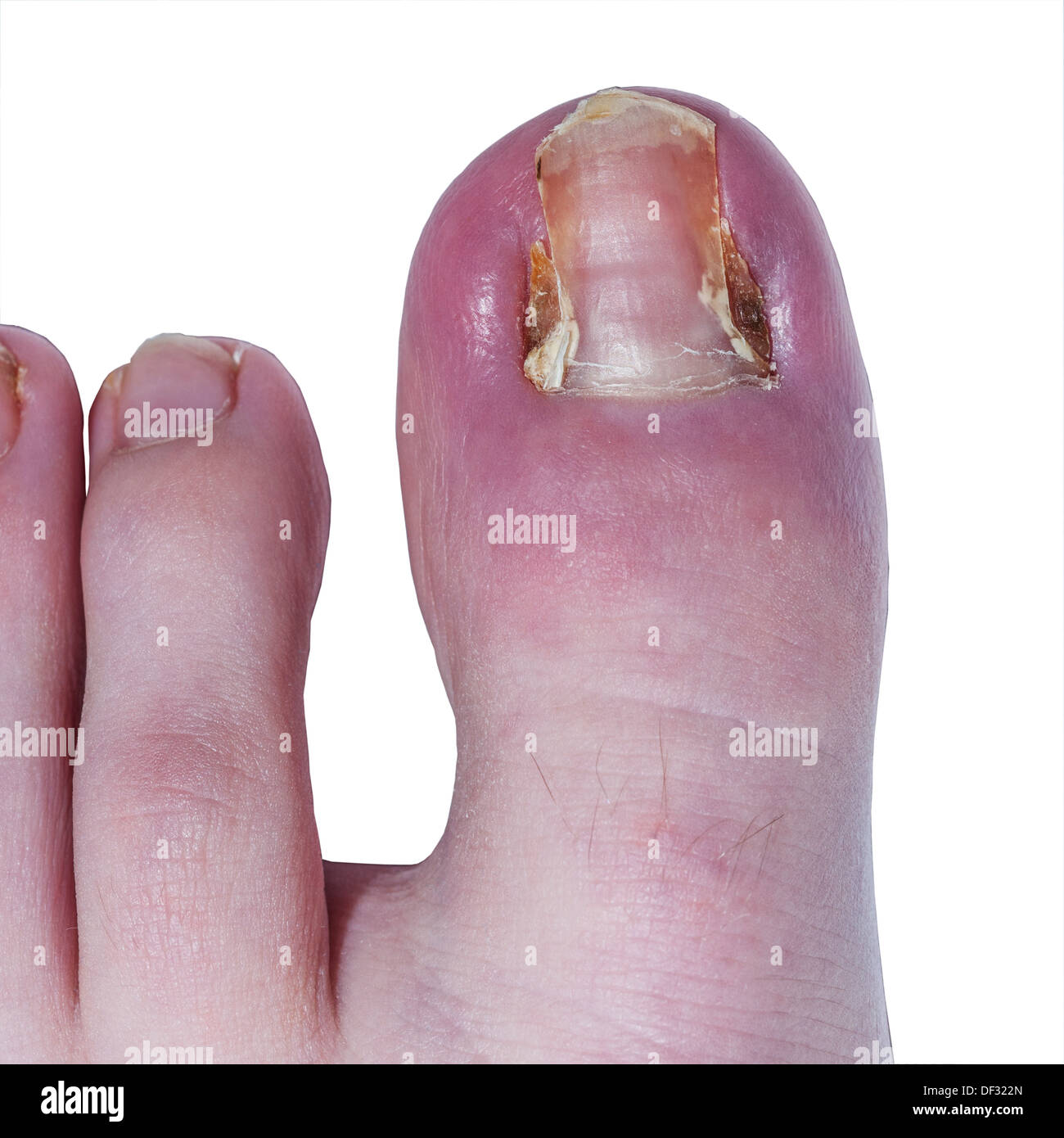 Nail Salons In Brooklyn >> My Toenail Is Cutting Into My Skin - Nail Ftempo