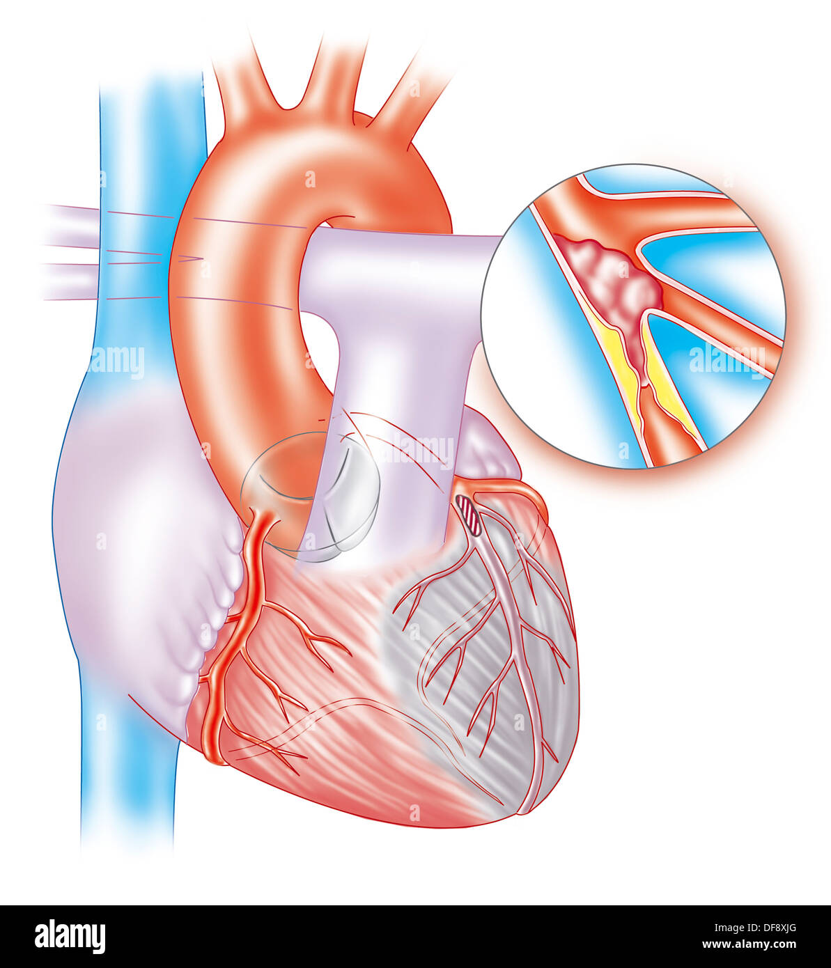 Heart attack drawing stock photo royalty free image 61047464 heart attack drawing ccuart Images