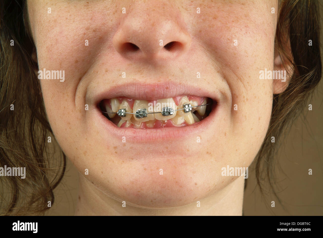 how to make fake braces that look real at home