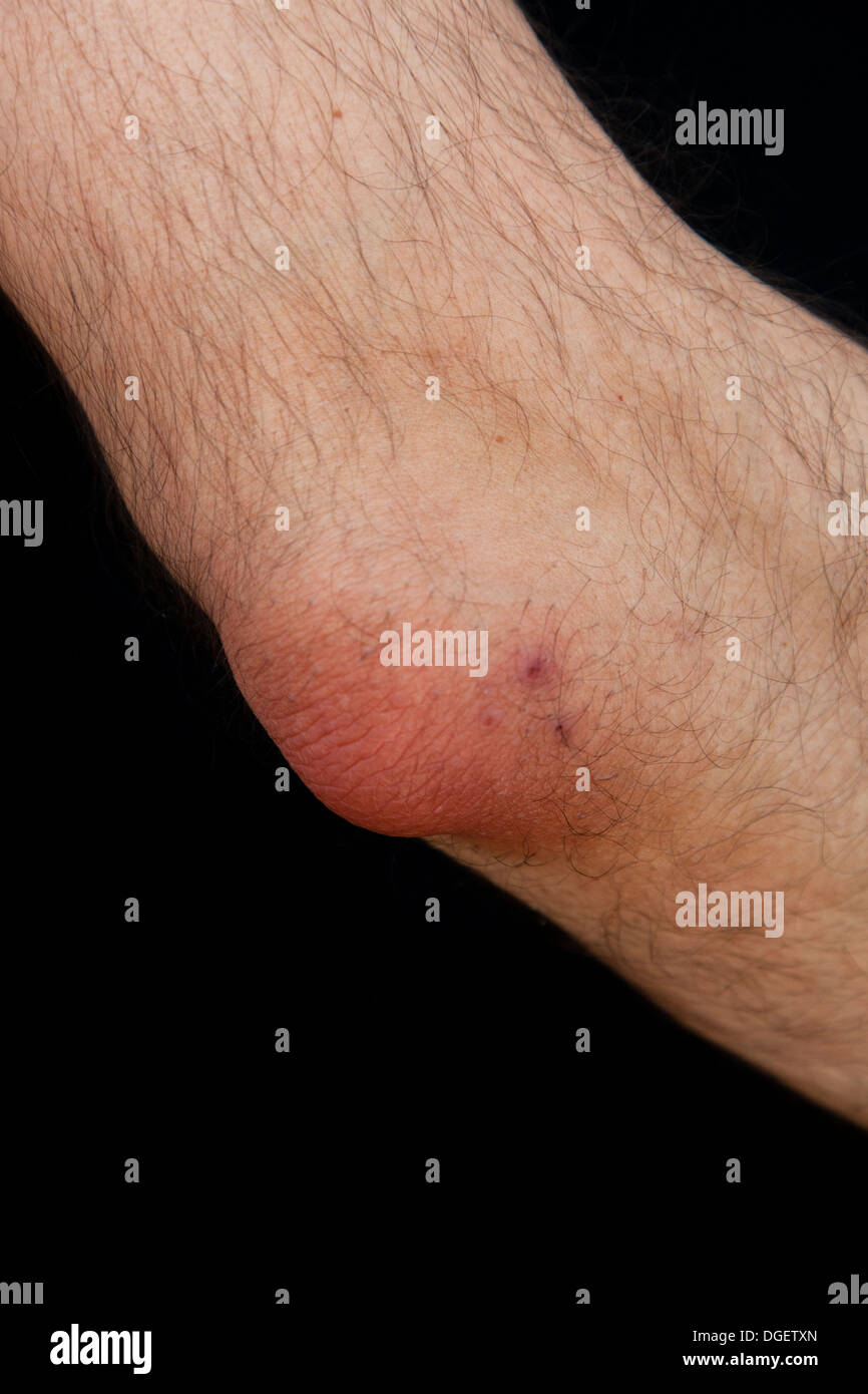 Olecranon Bursitis Is A Medical Condition Caused By The