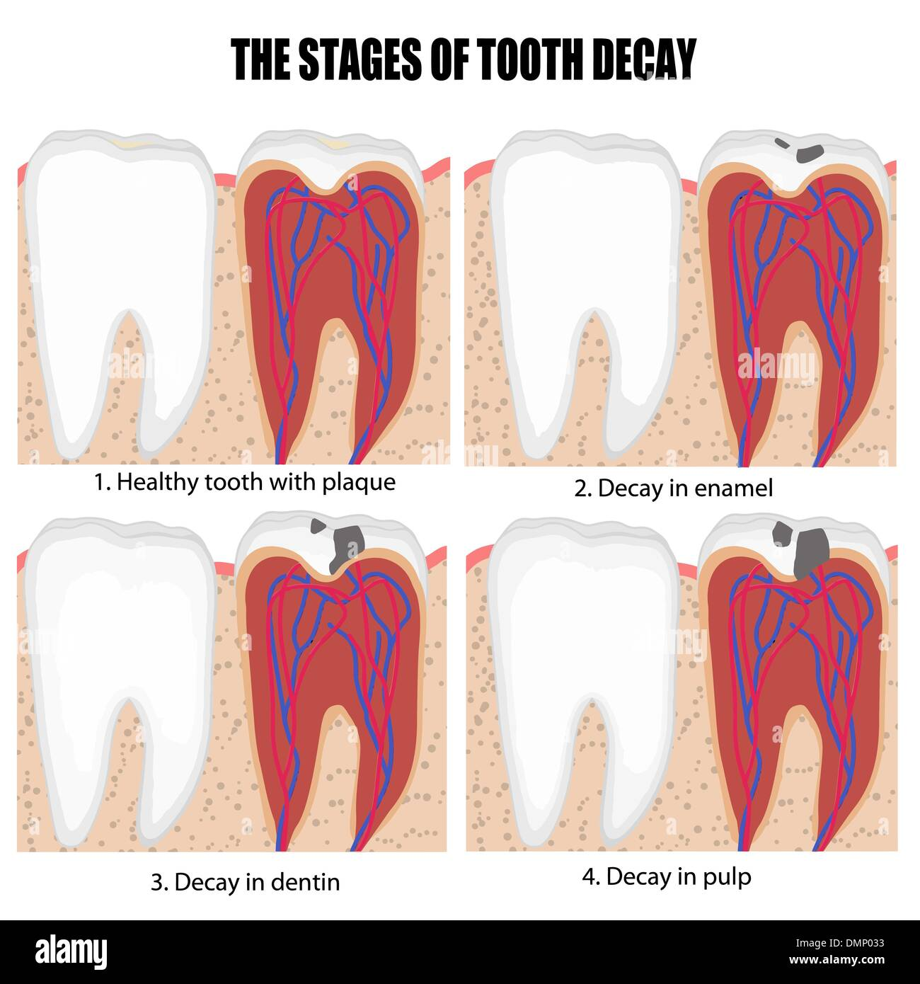Diagram of tooth with caries stages stock vector art diagram of tooth with caries stages pooptronica