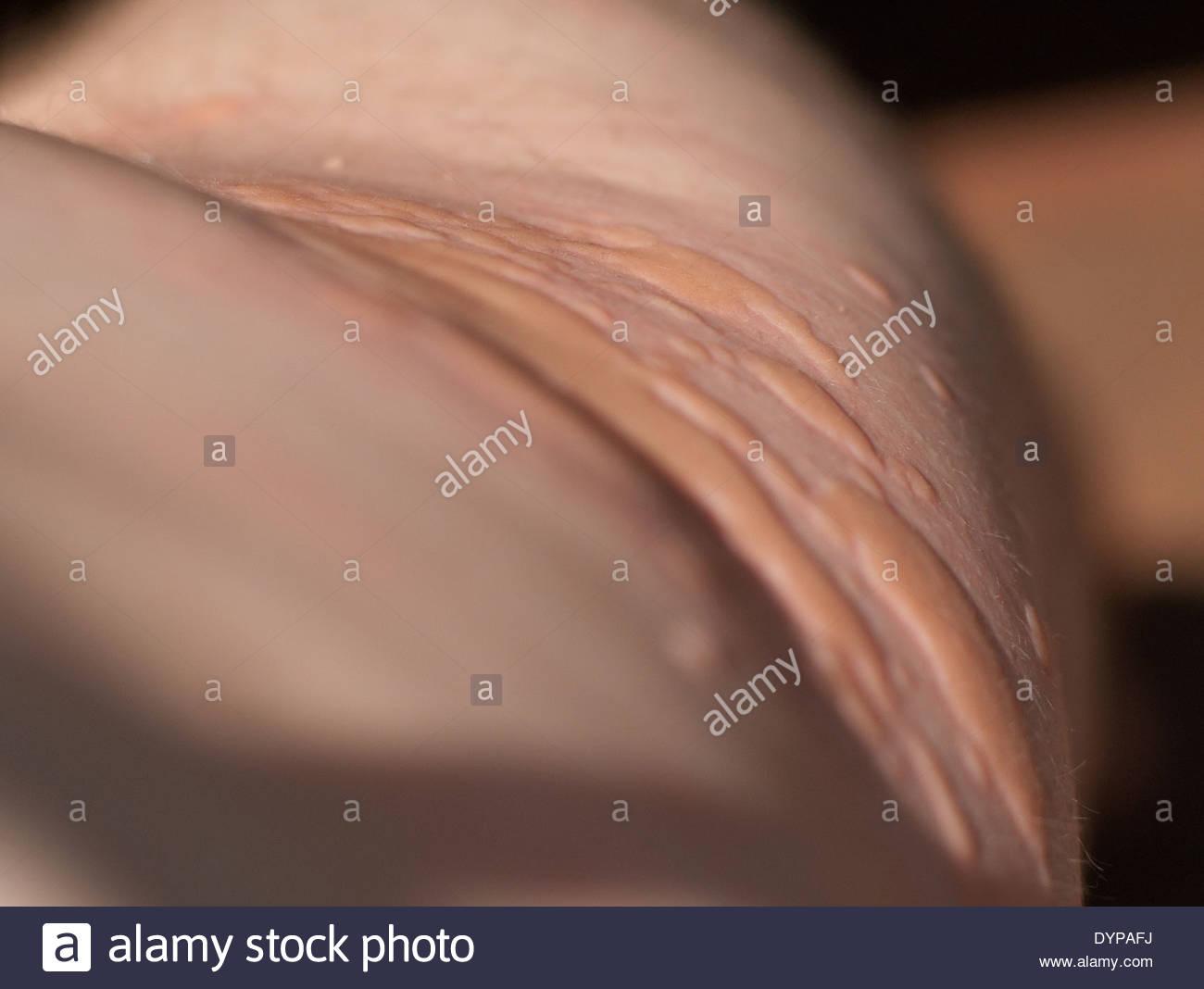 rash on torso #9