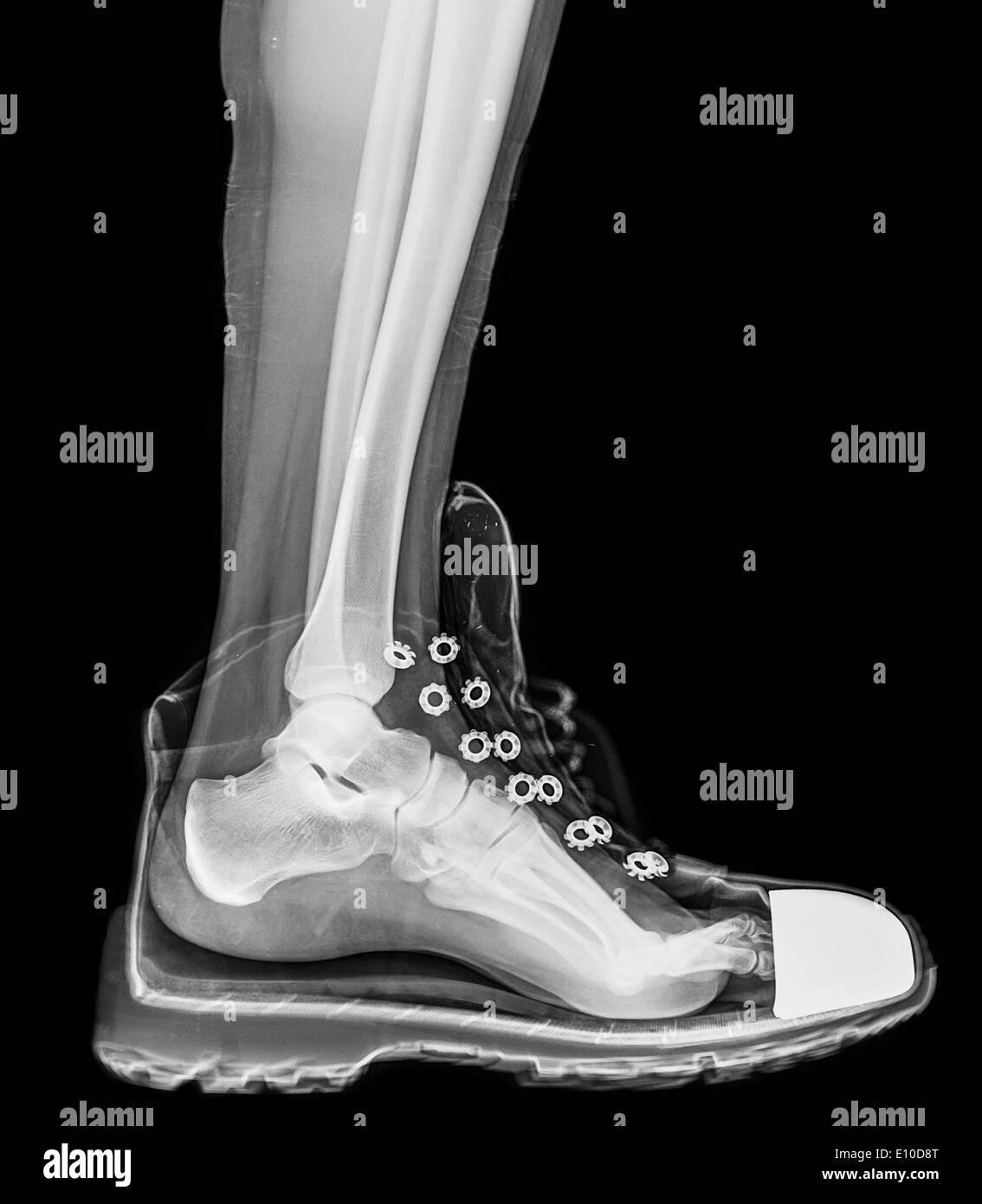 Running Shoe Toe Covers