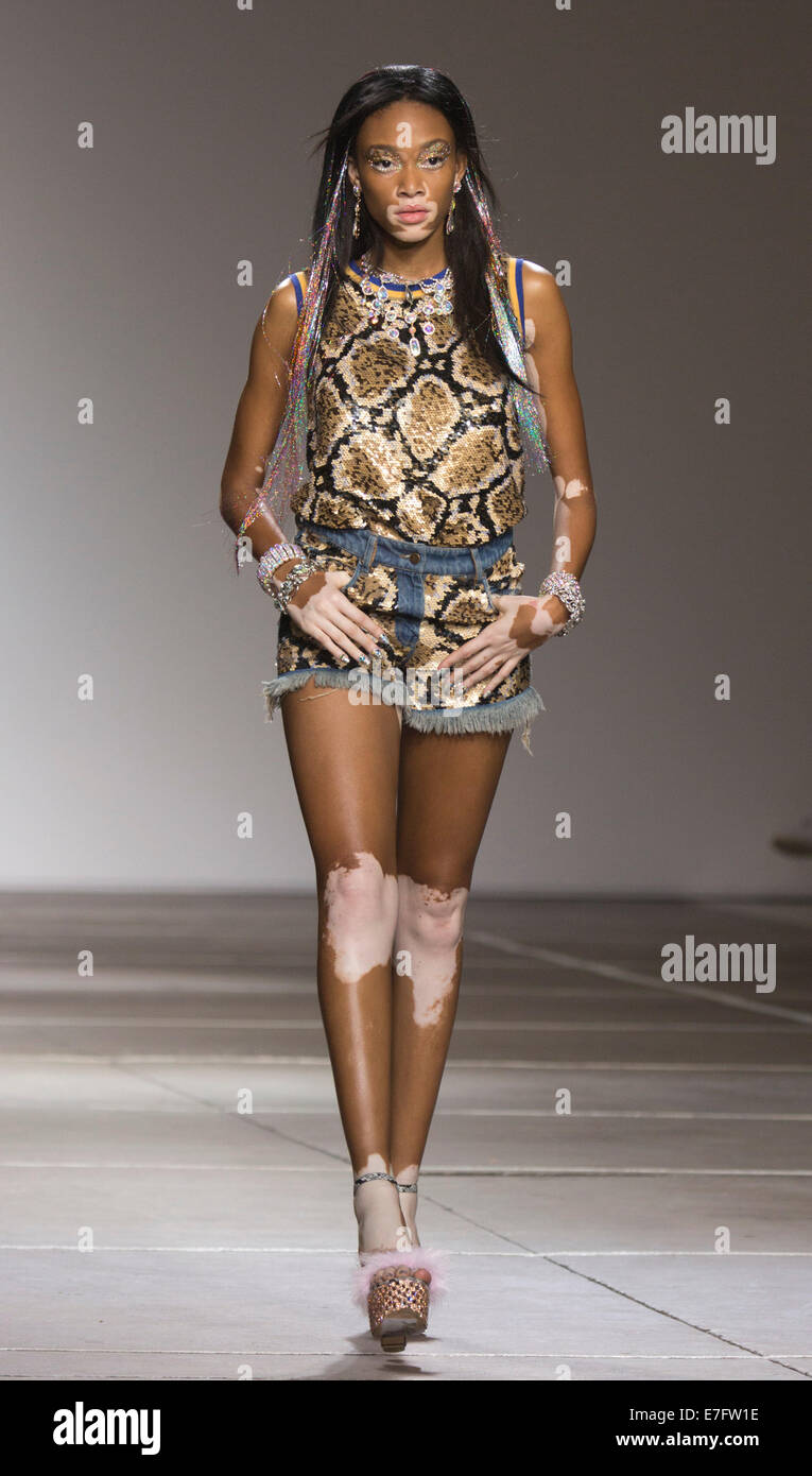 london uk 16 september 2014 a model with vitiligo skin