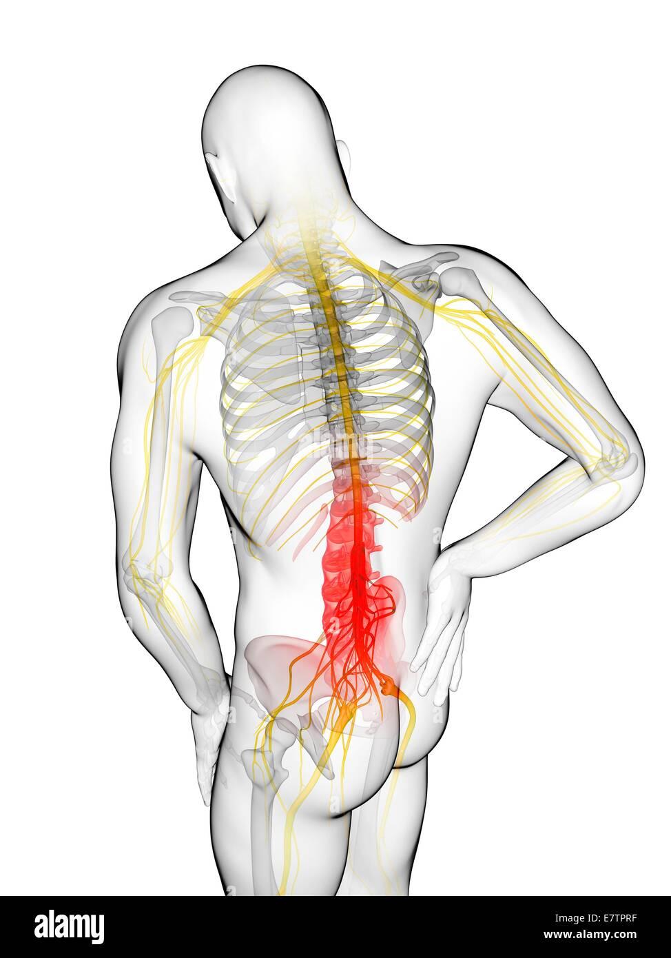 Седалищный нерв симптомы и лечение в домашних условиях 65