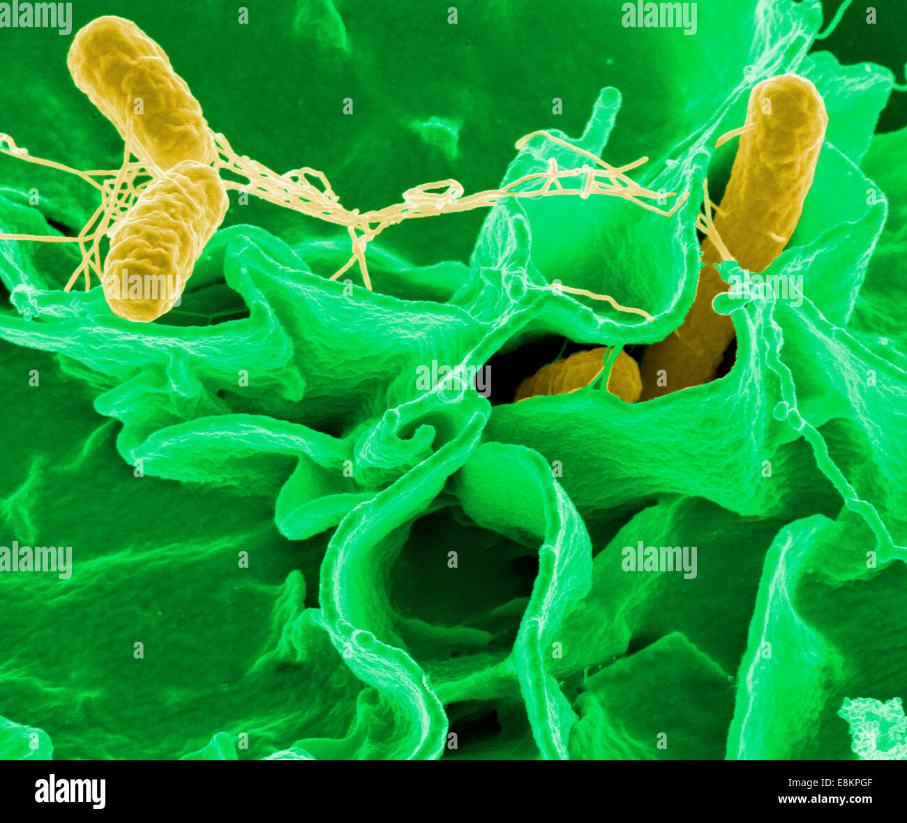 Cunnilingus cause bacterial food poisoning
