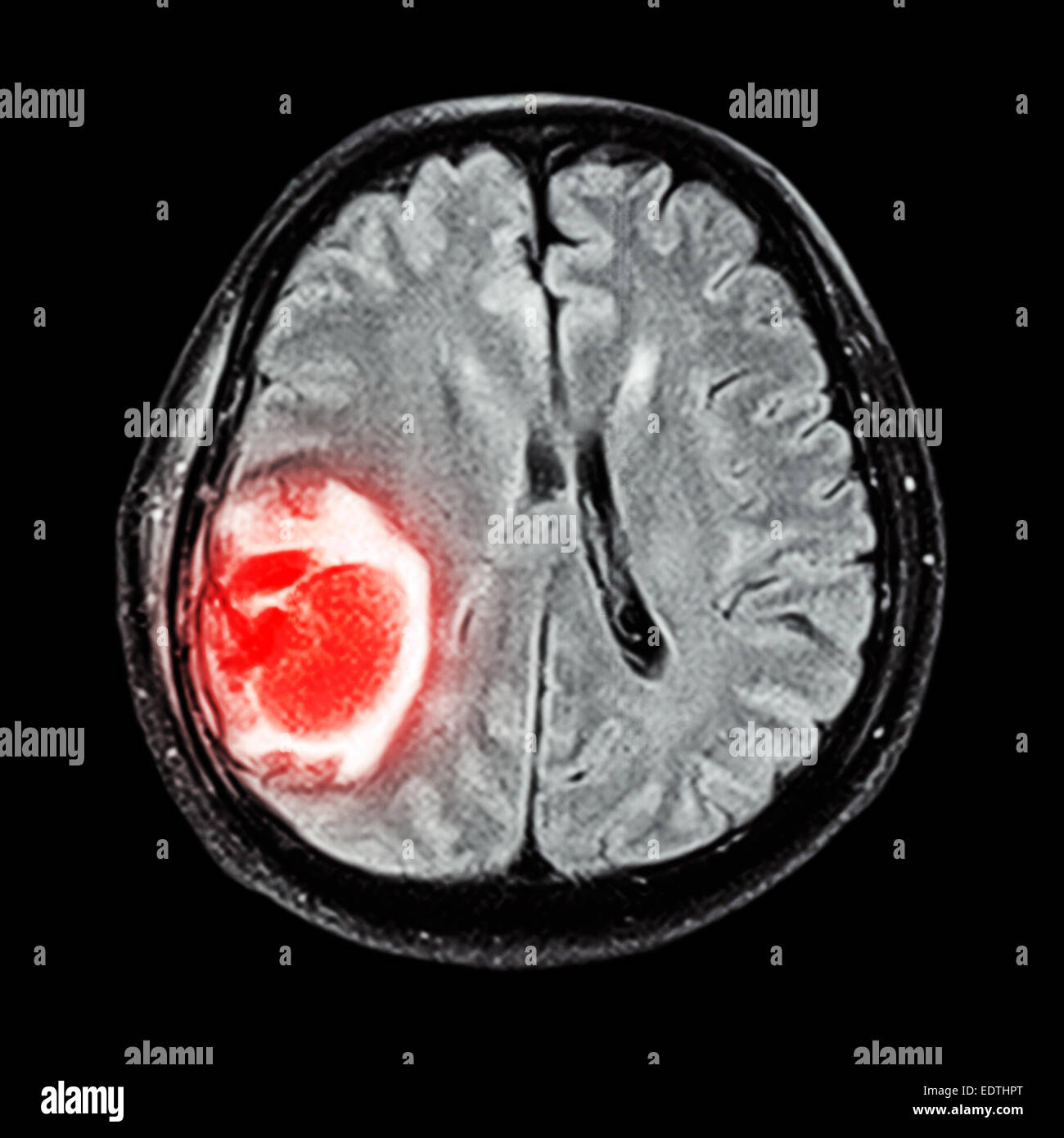 brain scan with tumor - photo #28