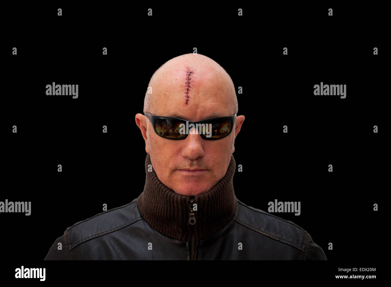 laceration stock photos laceration stock images alamy evil looking man wearing sun glasses a serious head injury looking straight at the camera
