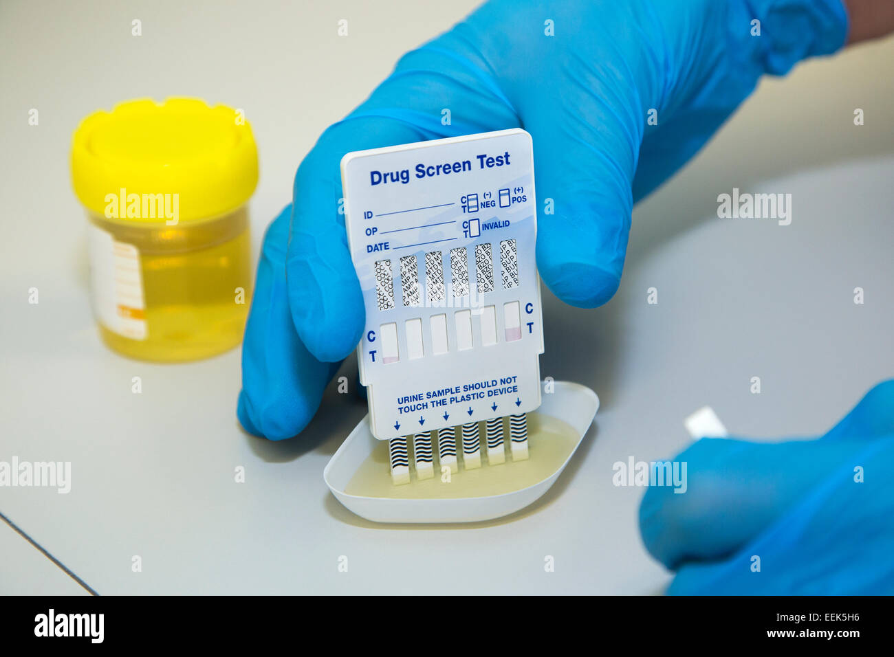 does a 10 panel drug screen test for steroids