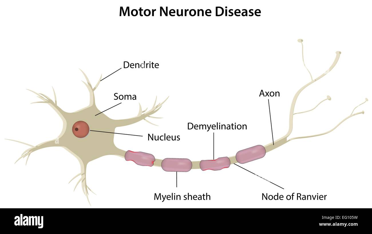 Motor Neurone Disease Stock Vector Art Illustration