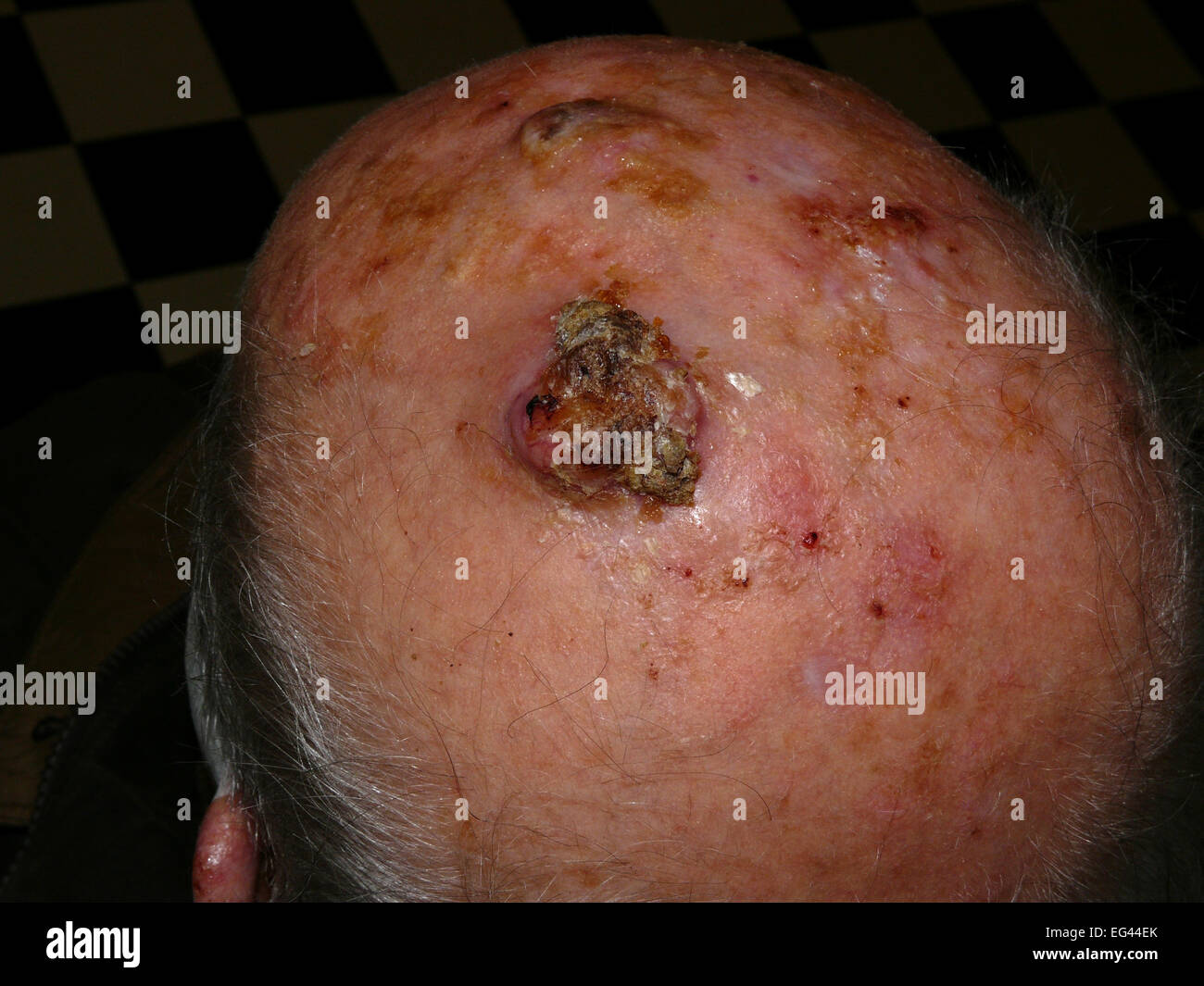 squamouscell carcinoma of the scalp stock photo royalty