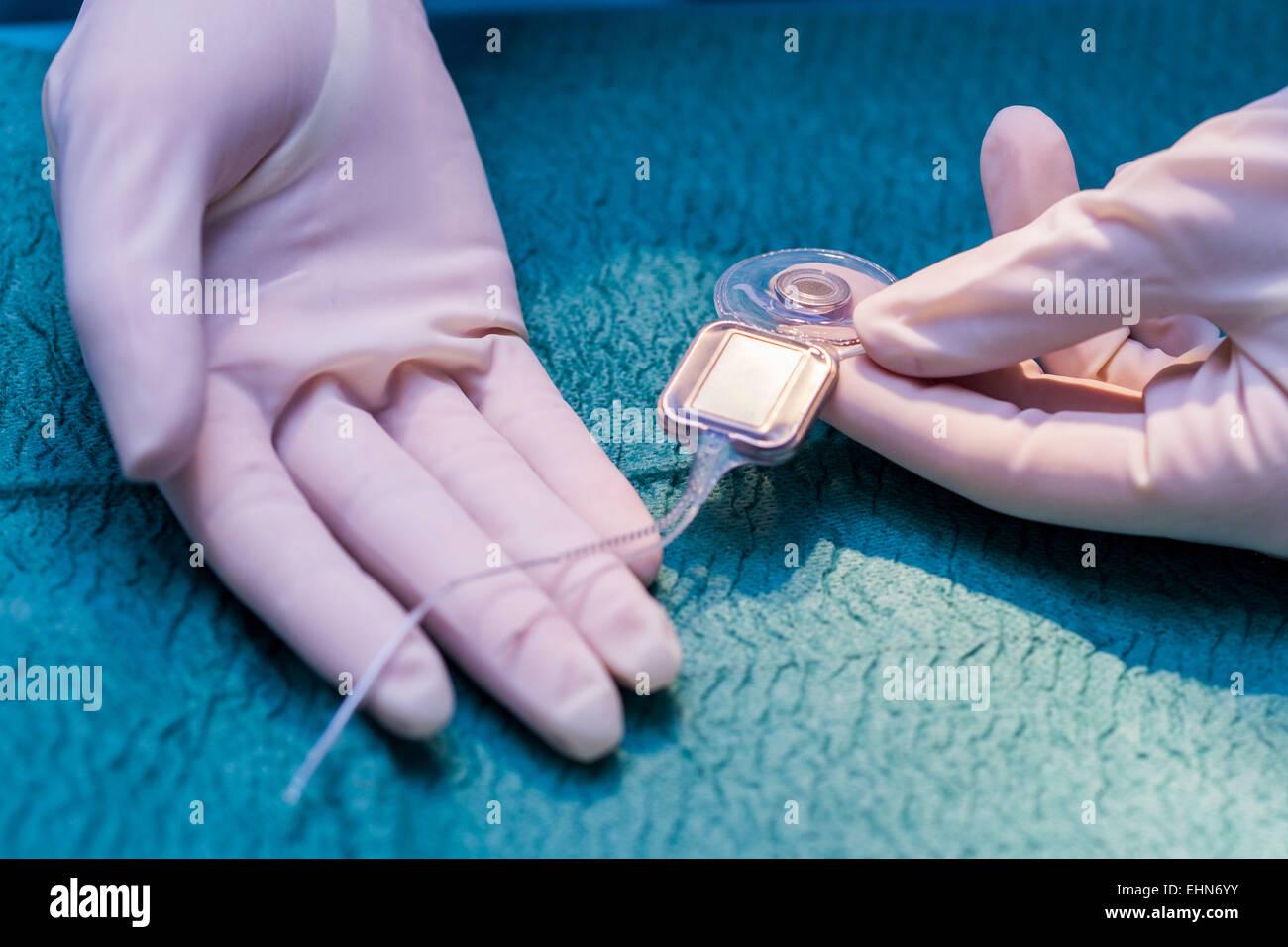 a review of a cochlear implantation