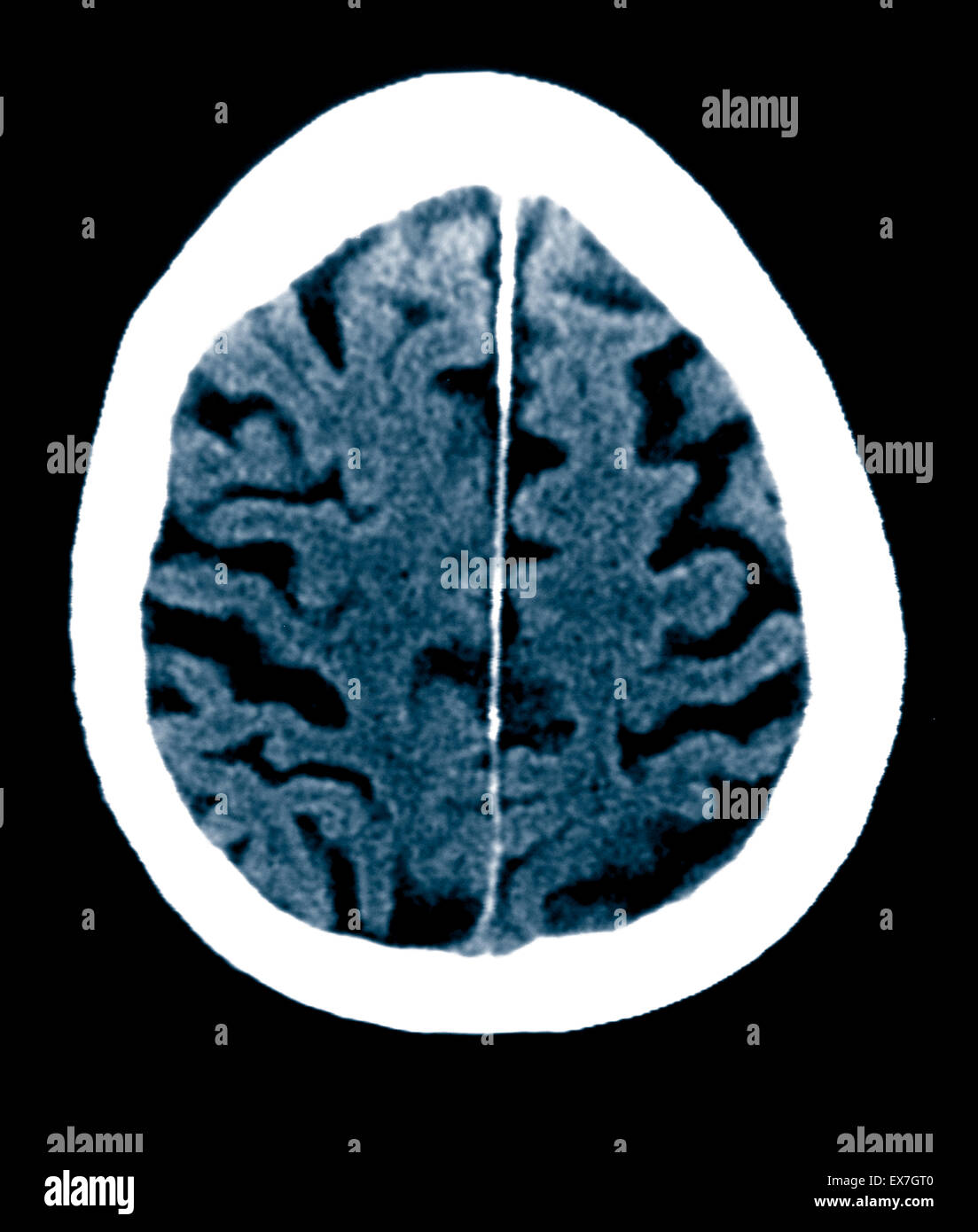 Ct scan of an 84 year old man with alzheimers disease ct shows ct scan of an 84 year old man with alzheimers disease ct shows brain atrophy ccuart Images