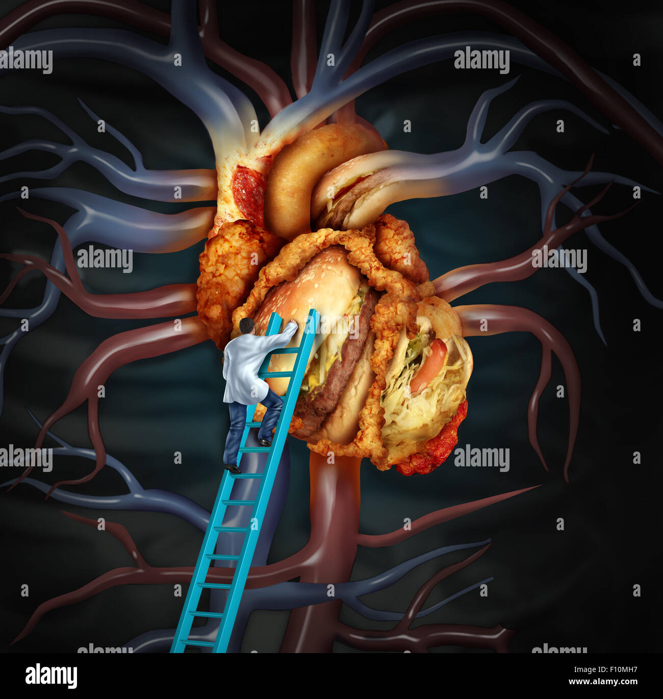 High cholesterol treatment and medical therapy as a doctor on a high cholesterol treatment and medical therapy as a doctor on a ladder cleaning a problem heart made of greasy fast food or a surgeon removing fat buildup biocorpaavc