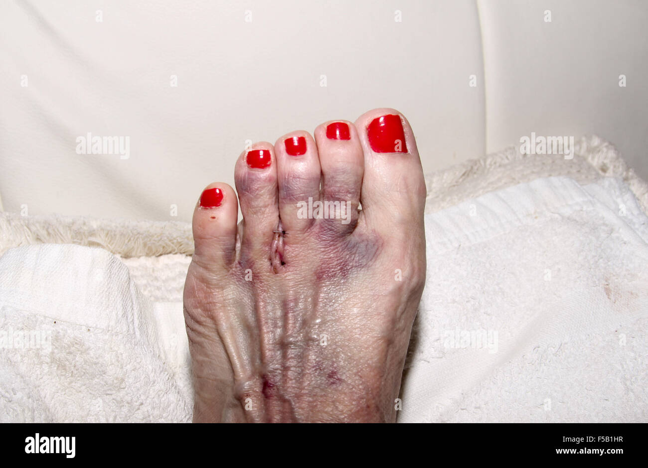 foot after morton s neuroma surgery between the second and third toe stock photo royalty free. Black Bedroom Furniture Sets. Home Design Ideas