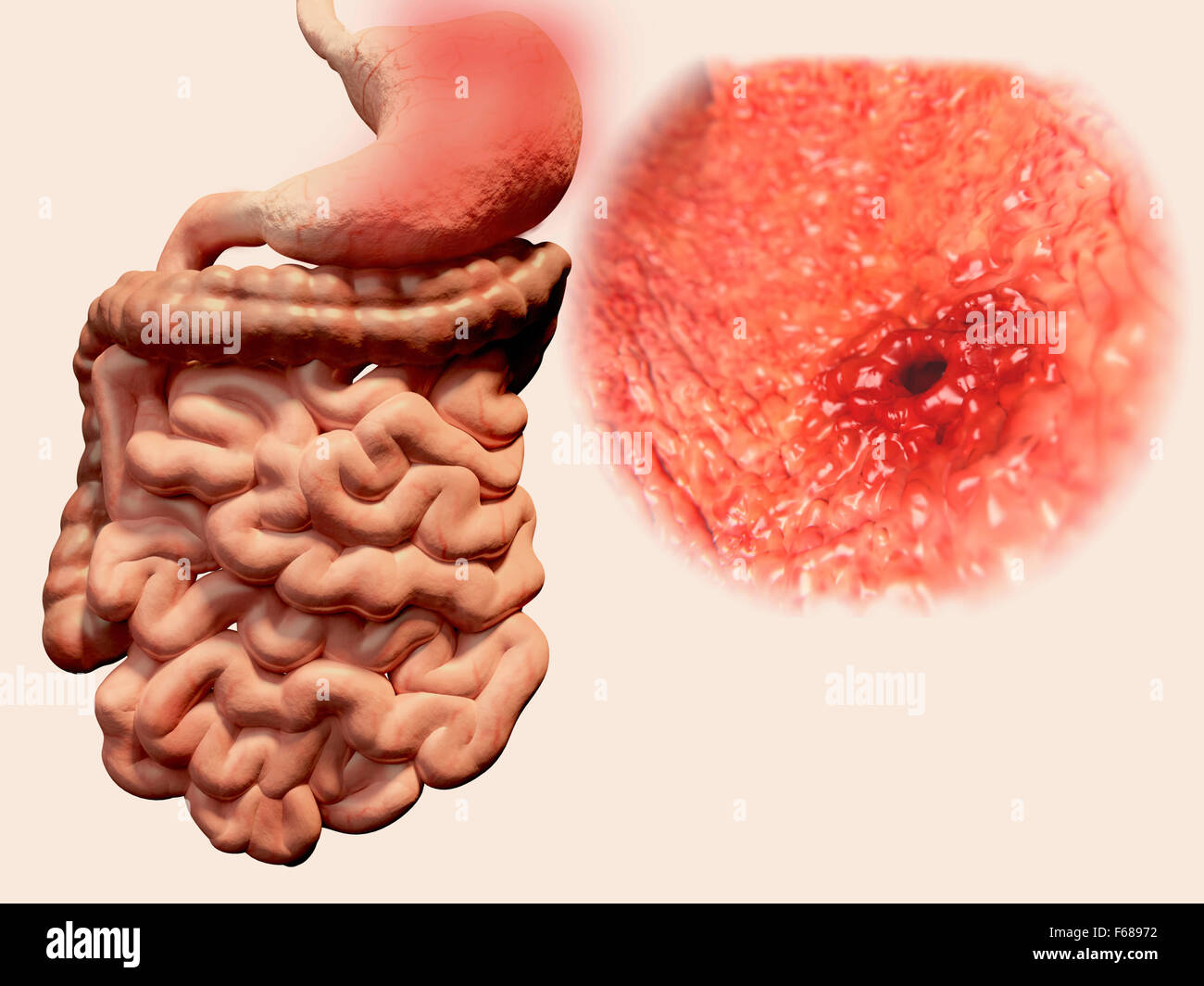 gastric (stomach) ulcer, illustration. gastric, or peptic, ulcers, Skeleton