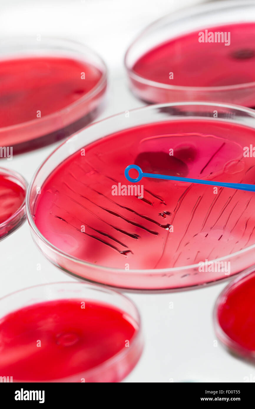 INOCULATION MICROBIOLOGY Stock Photo: 94061329 - Alamy for Inoculation Microbiology  303mzq
