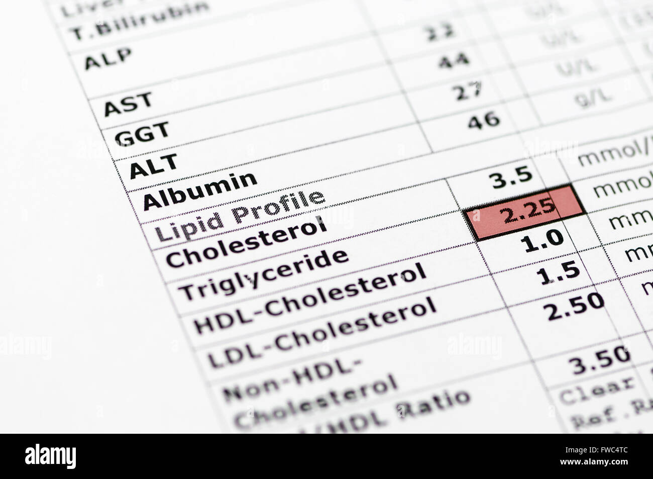 lipid test A cholesterol (or lipid profile) test looks at the various levels of cholesterol and other fats in your blood learn more about this blood test from a trusted source.