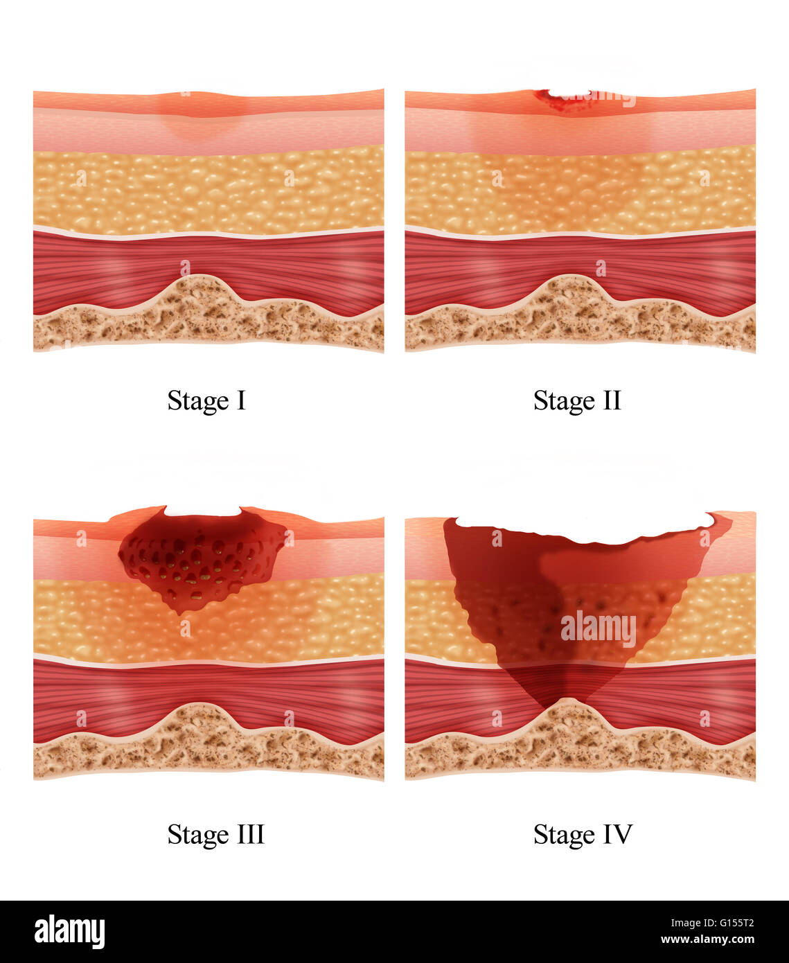 illustration showing the stages of of a bed sore or pressure ulcer