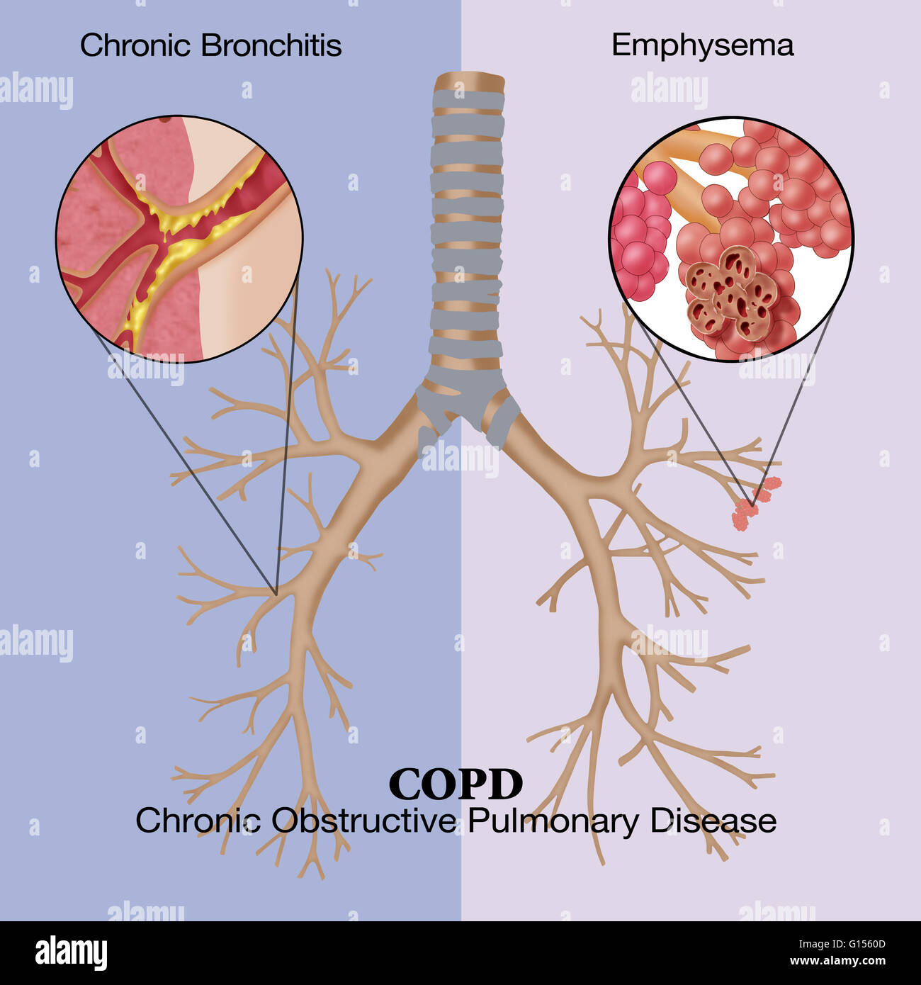 essay on chronic obstructive pulmonary disease Chronic obstructive pulmonary disease (copd) is a type of obstructive lung  disease characterized by long-term breathing problems and poor airflow the  main.