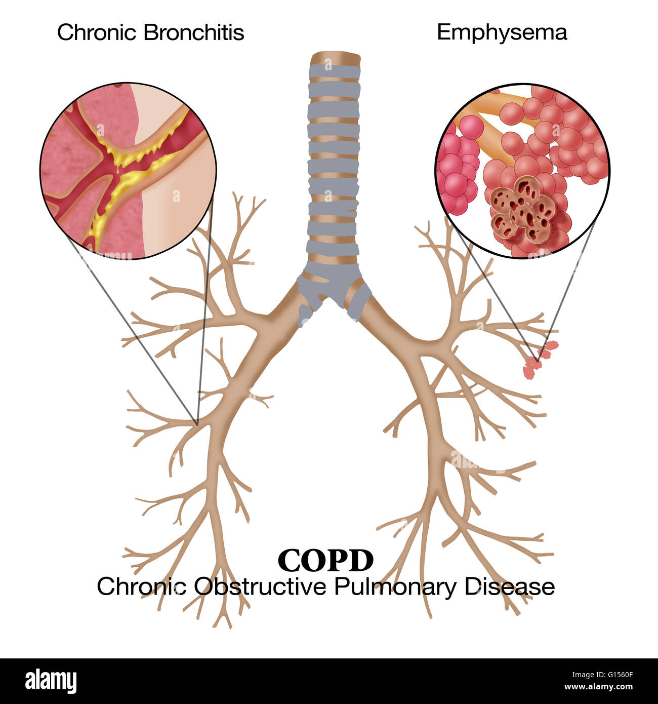 emphysema chronic obstructive pulmonary disease and Learn more about living with chronic obstructive pulmonary disease (copd.