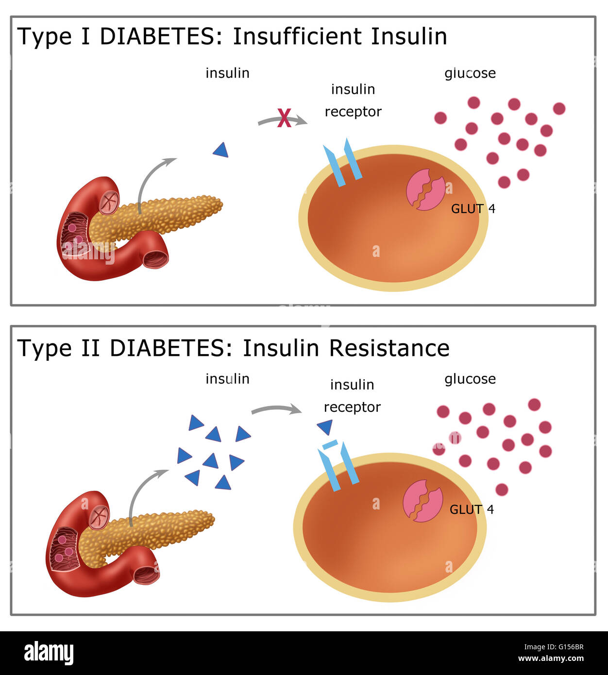 type 1 and type ii diabetes Insulin and glucagon are released by β and α cells of the pancreas to control blood glucose concentration and causes and treatment of type i and type ii diabetes.