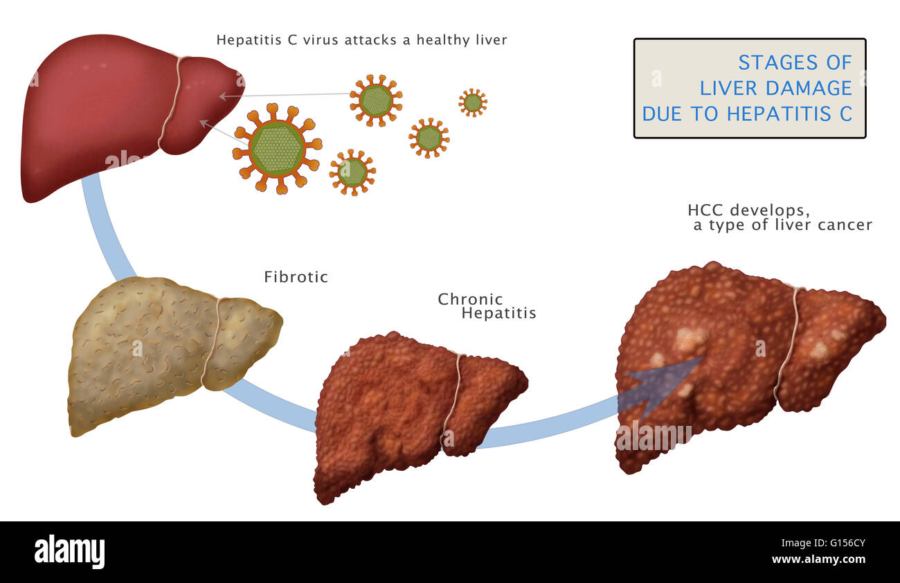 cirrhosis of the liver a chronic Cirrhosis, another name for chronic liver disease, can have many causes but is most often a consequence of viral hepatitis and alcoholism 2.