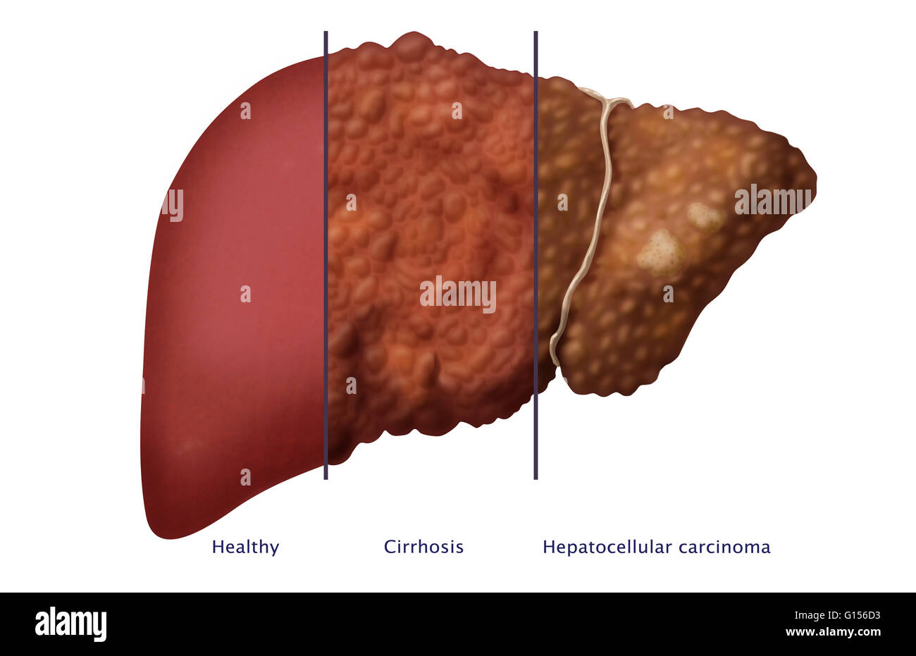 cirrhosis of the liver a chronic Excessive and chronic alcohol consumption is the most common cause of liver  cirrhosis cirrhosis from drinking alcohol can develop over many years.