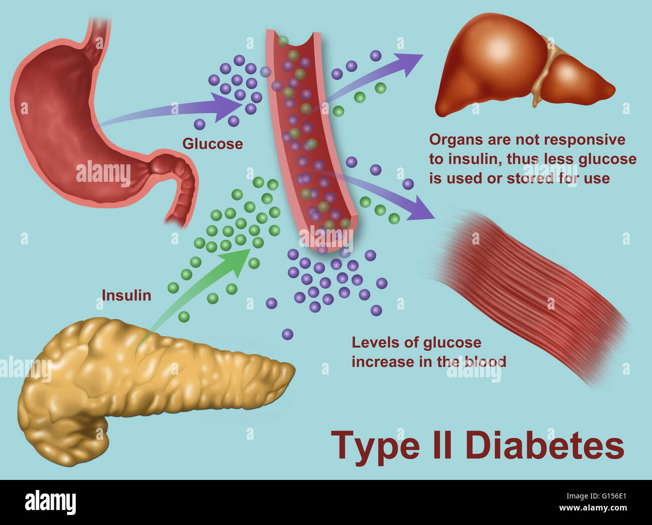 type 1 diabetes insulin and glucose relationship