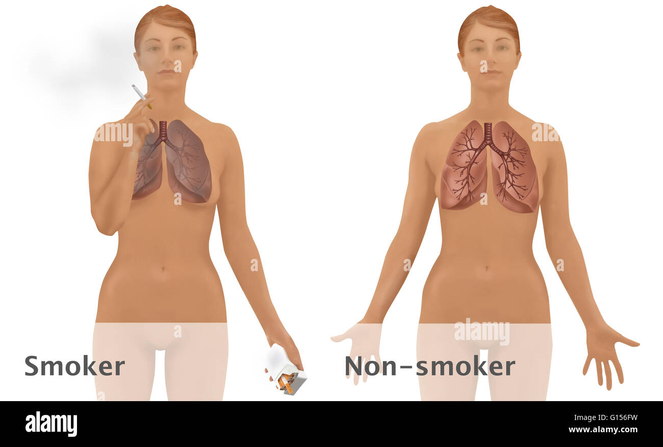 smokers and nonsmokers comparison