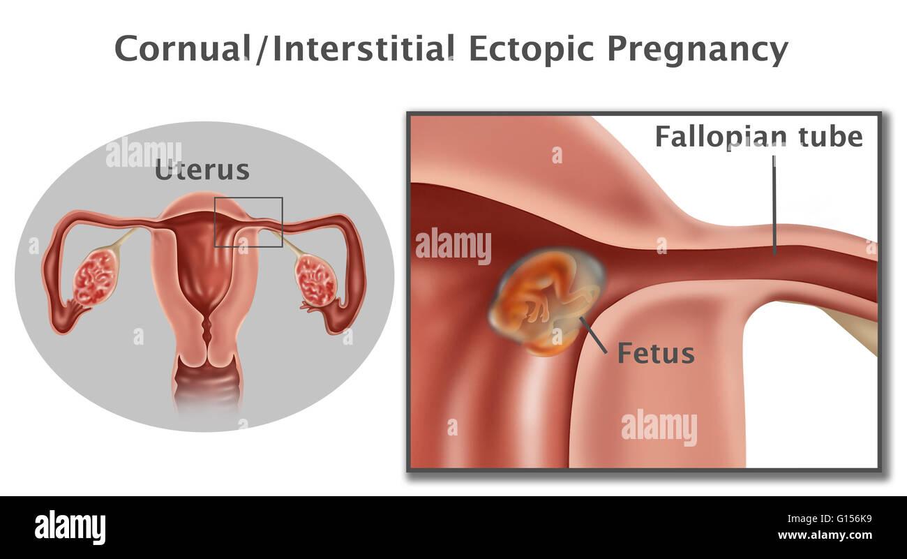 Anatomy of uterus in pregnancy