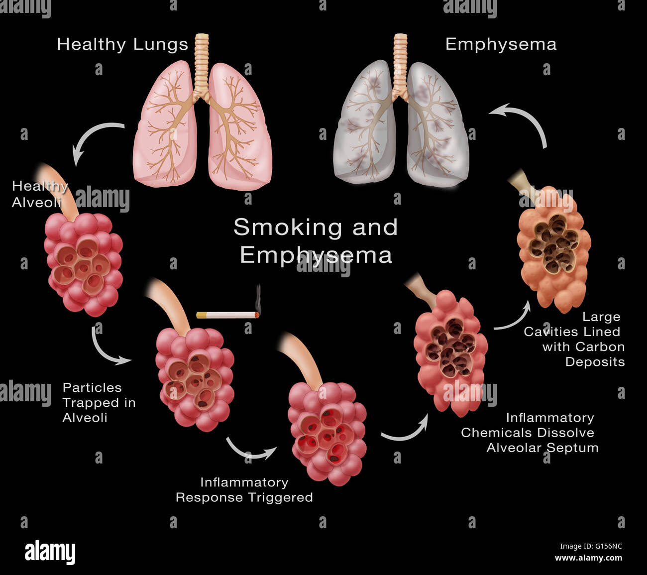 Stages Of Lung Damage Of A Smoker Leading To Emphysema