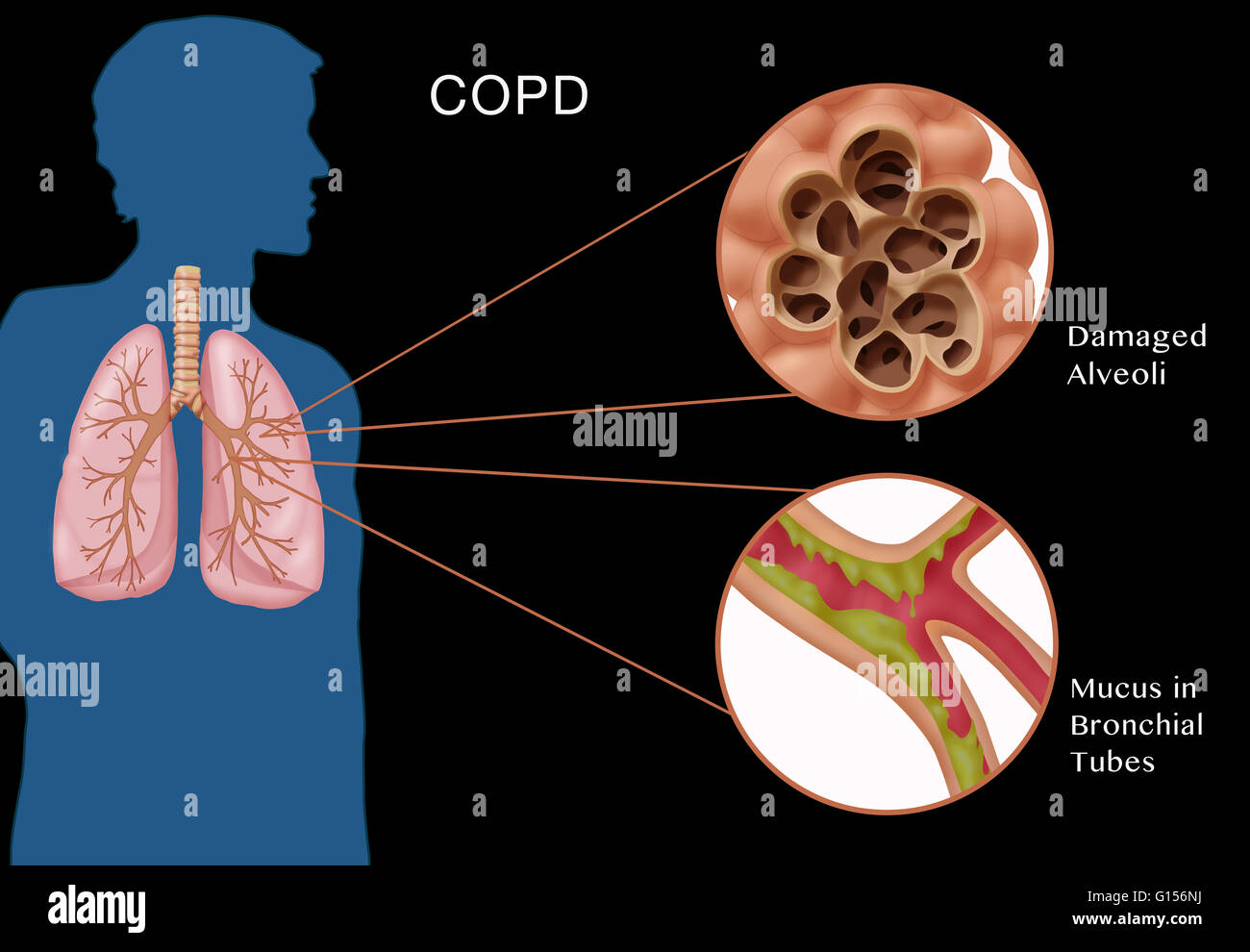 emphysema chronic obstructive pulmonary disease and Chronic obstructive pulmonary disease (copd), which includes chronic bronchitis and emphysema, is a chronic lung disease that makes it hard to breathe the disease is increasingly common, affecting millions of americans, and is the third leading cause of death in the us the good news is copd is.