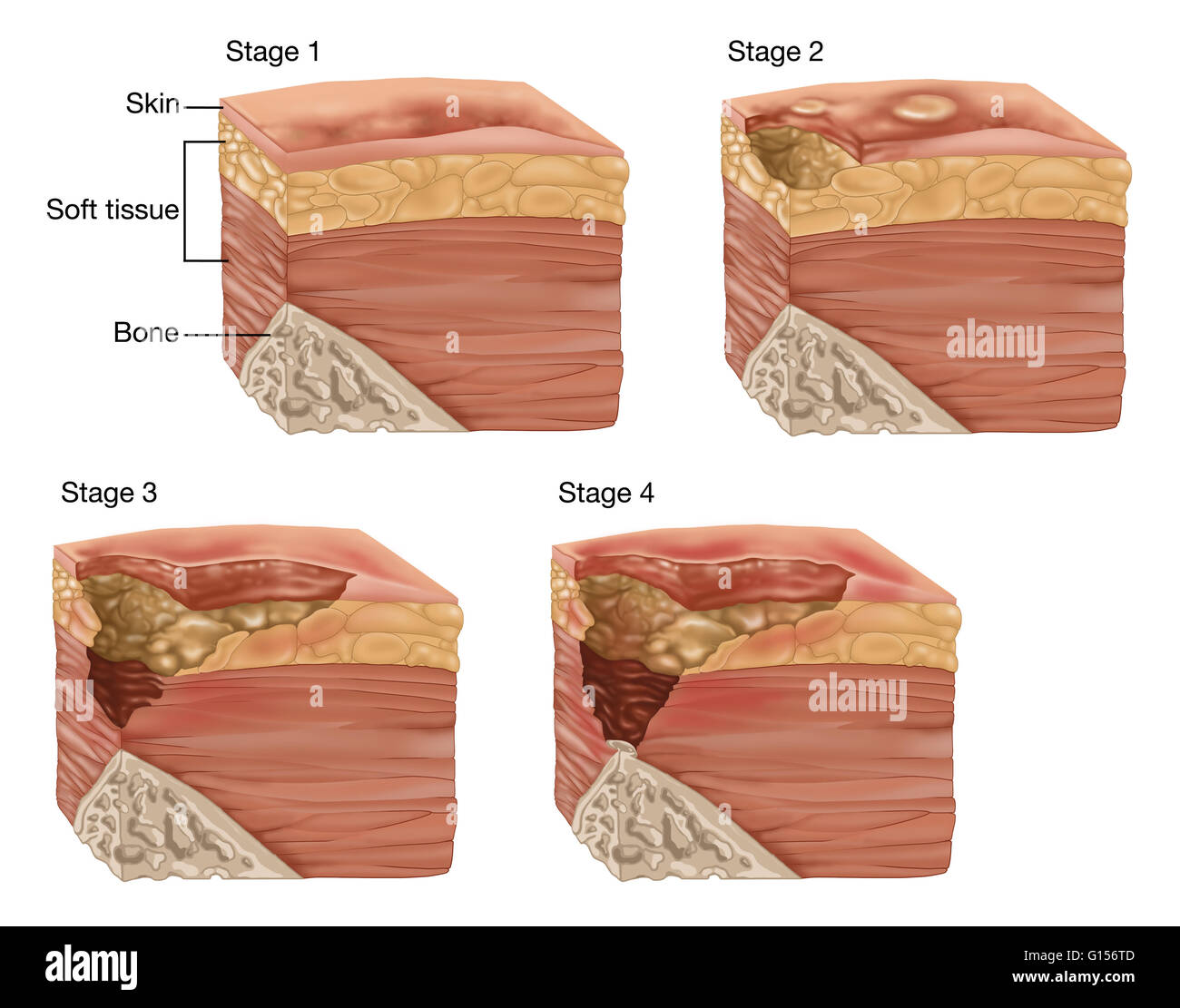 illustration showing the 4 stages of a bedsore or pressure sore