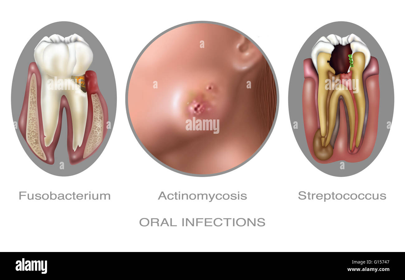 Anus bacteria illness oral