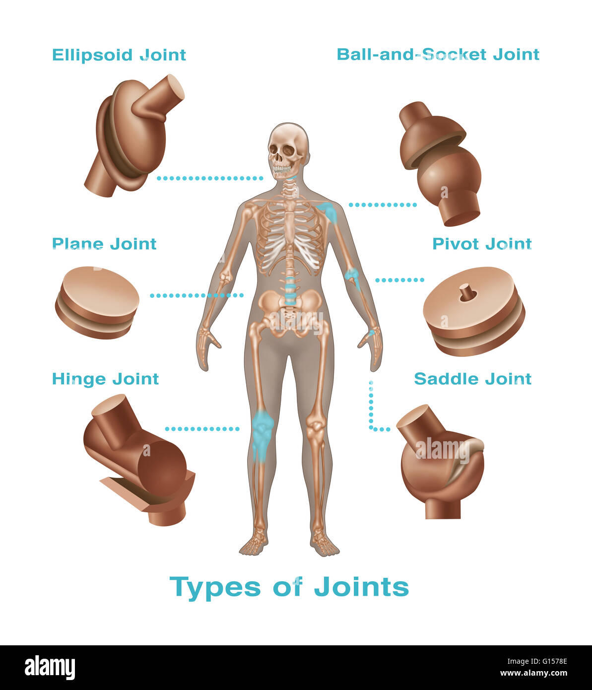 ball and socket joint. joint replacements in the human body. types of include ball and socket s